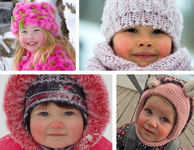 winter cheeks