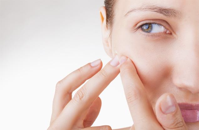 Natural acne remedies 4