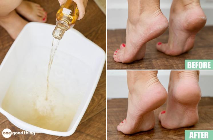 Vinegar Foot Soak is Magic for Dry Heels