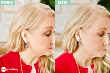 droopy earring cure